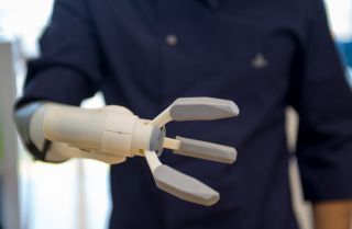 A prospective user tests out a prosthetic arm manufactured with 3D printing.